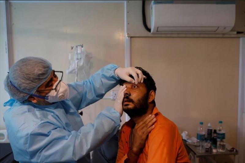 भारतमा कालो ढुसी संक्रमणबाट हालसम्म ४३ सयको मृत्यु